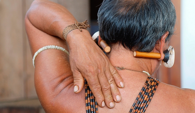 AMAZÔNIA: Indígenas da Amazônia têm dores frequentes, mas não reclamam